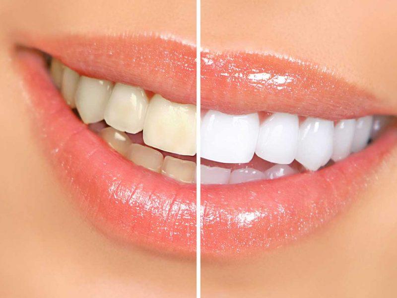 Eryaman Diş Profesyonel Hizmetler