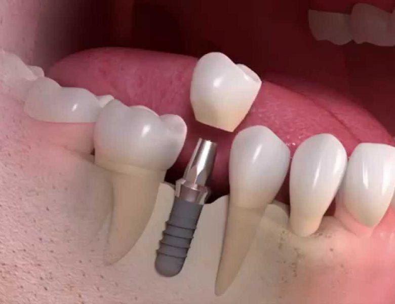 Eryaman Diş Ve Diş Sağlığı Hizmetleri